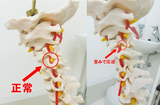 頸椎正常と歪み